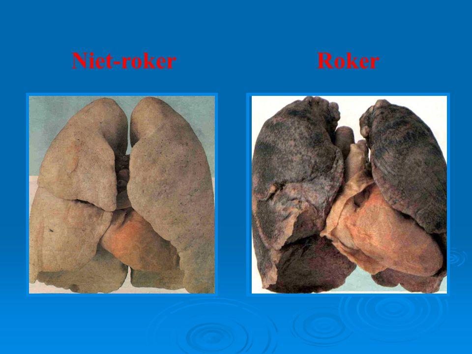 Niet-roker Roker 19