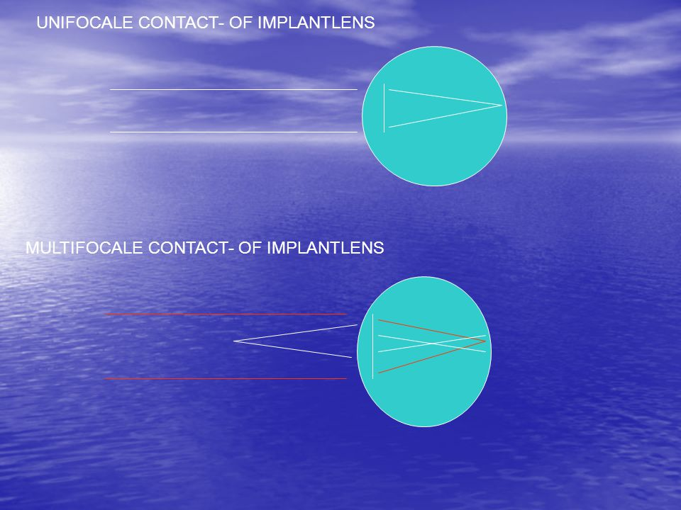 UNIFOCALE CONTACT- OF IMPLANTLENS