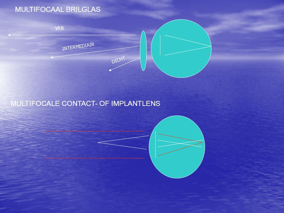 MULTIFOCALE CONTACT- OF IMPLANTLENS