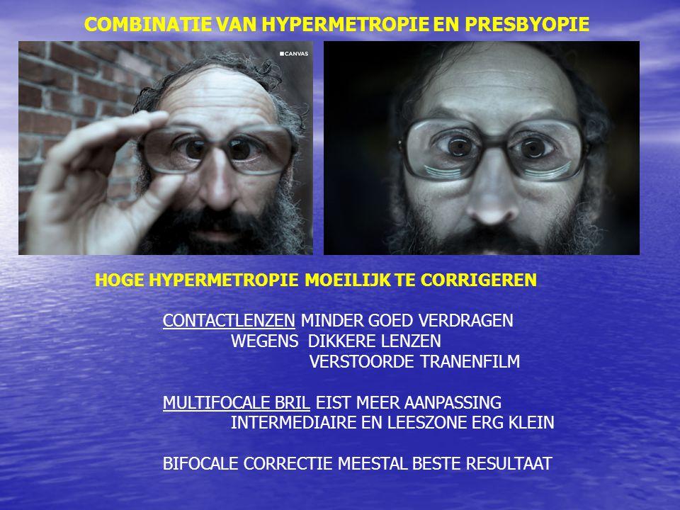 COMBINATIE VAN HYPERMETROPIE EN PRESBYOPIE