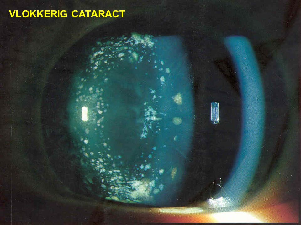 VLOKKERIG CATARACT