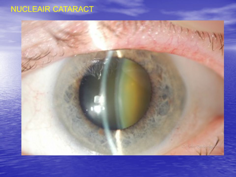 NUCLEAIR CATARACT