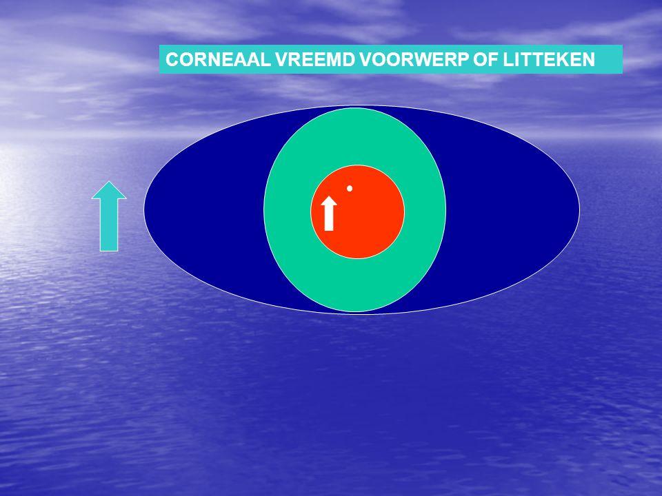 CORNEAAL VREEMD VOORWERP OF LITTEKEN