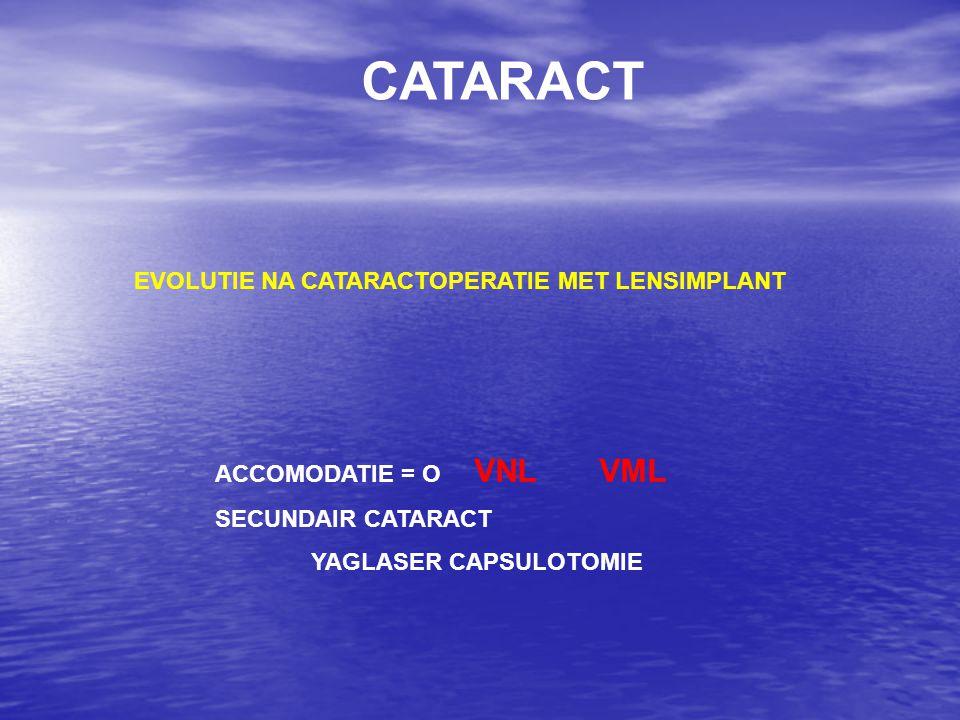 CATARACT EVOLUTIE NA CATARACTOPERATIE MET LENSIMPLANT