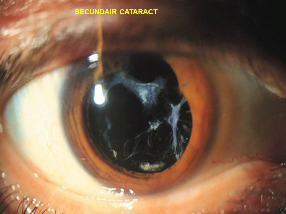 SECUNDAIR CATARACT