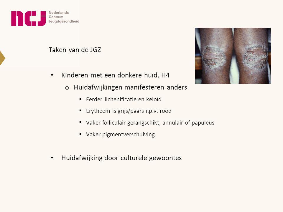 Kinderen met een donkere huid, H4 Huidafwijkingen manifesteren anders