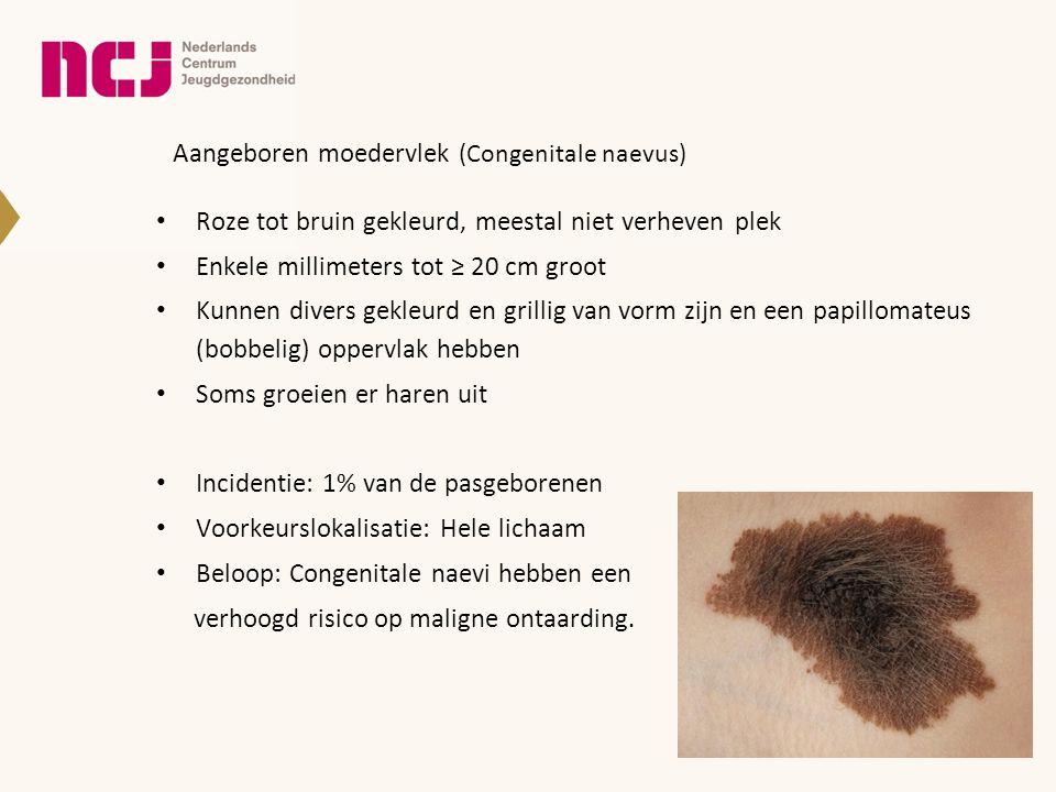 Aangeboren moedervlek (Congenitale naevus)