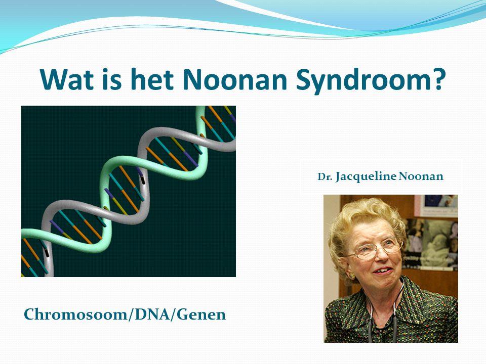 Wat is het Noonan Syndroom