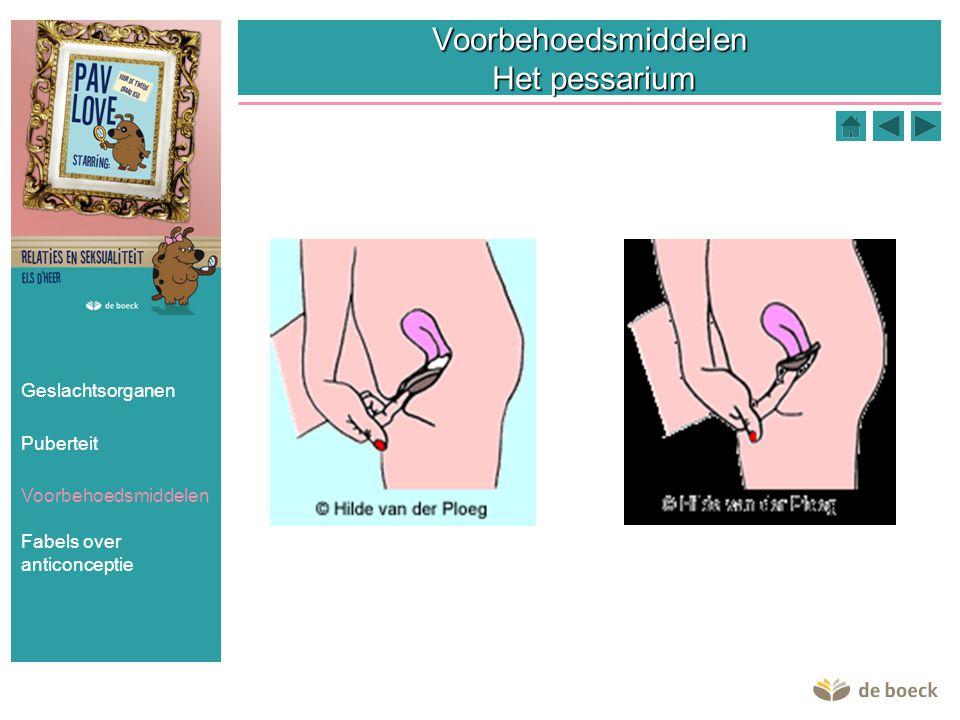Voorbehoedsmiddelen Het pessarium