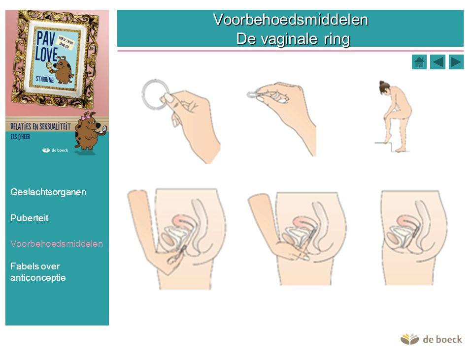Voorbehoedsmiddelen De vaginale ring