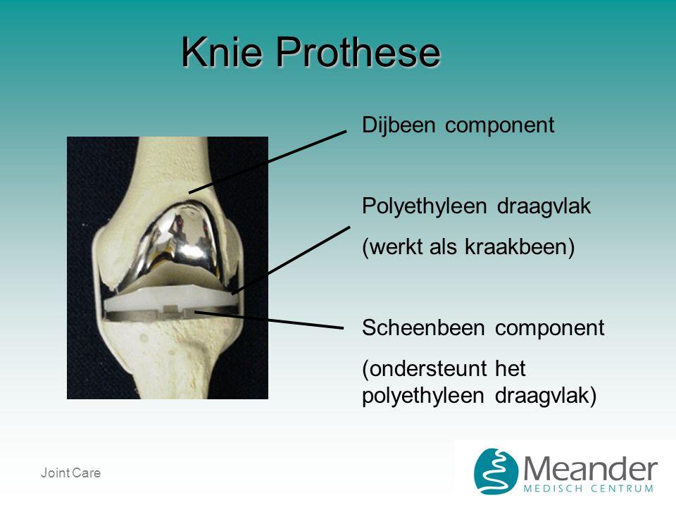 Knie Prothese Dijbeen component Polyethyleen draagvlak