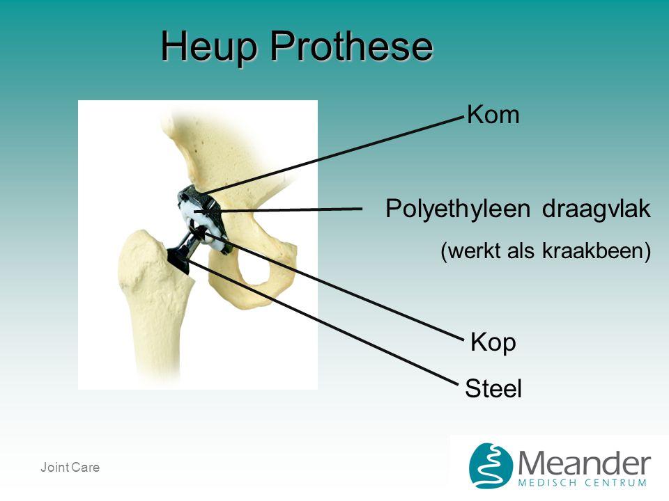 Heup Prothese Kom Polyethyleen draagvlak Kop Steel