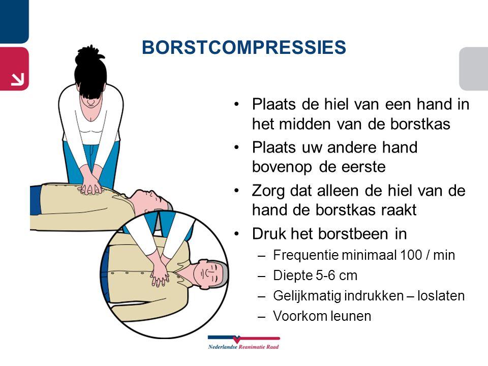 BORSTCOMPRESSIES Plaats de hiel van een hand in het midden van de borstkas. Plaats uw andere hand bovenop de eerste.