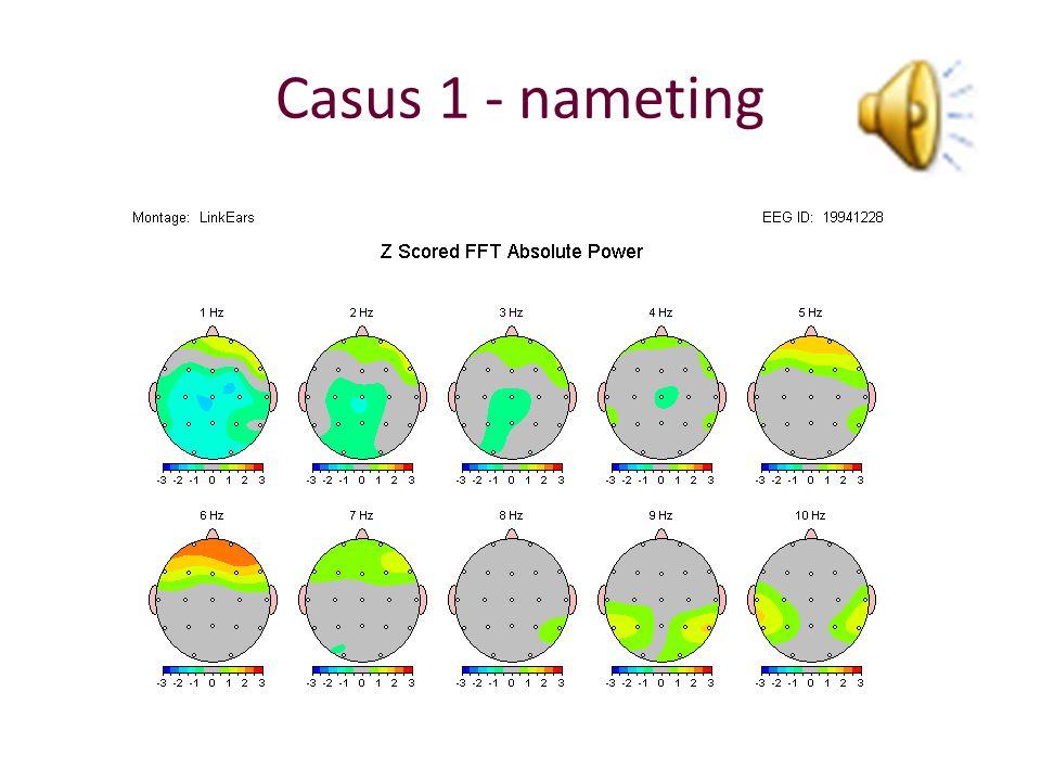 Casus 1 - nameting