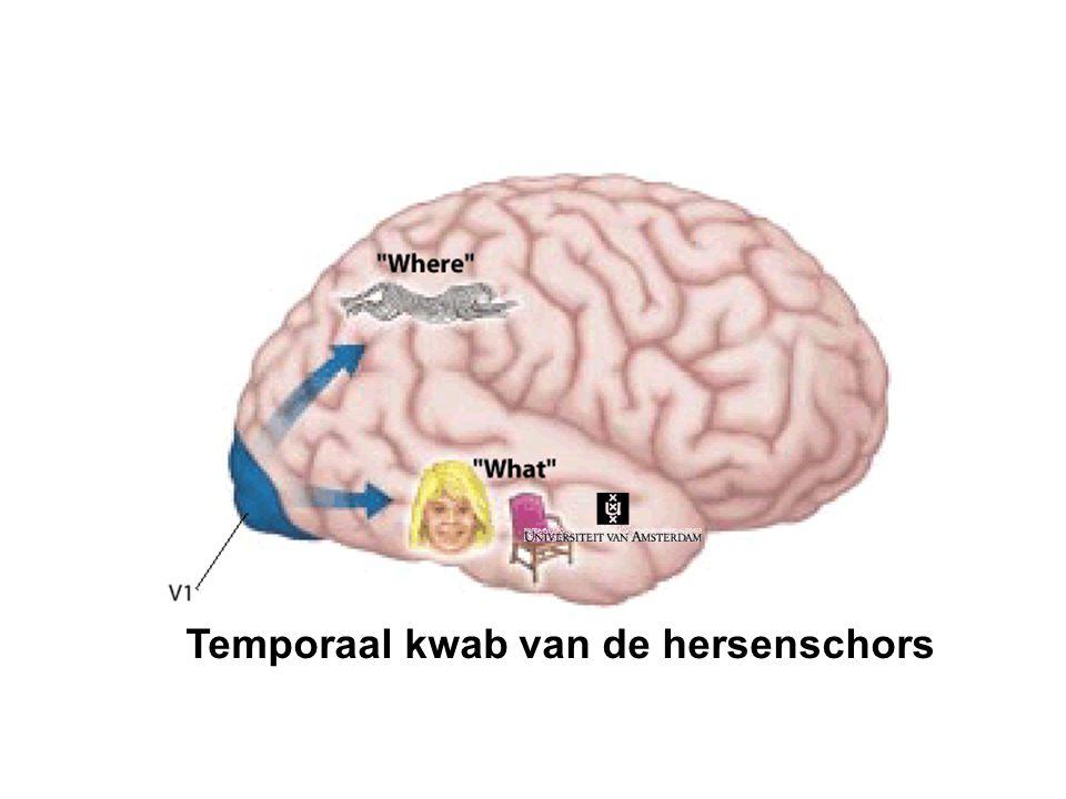 Temporaal kwab van de hersenschors