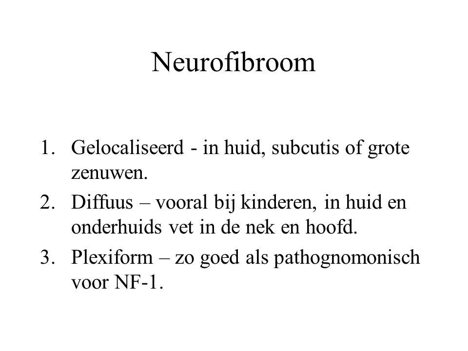Neurofibroom Gelocaliseerd - in huid, subcutis of grote zenuwen.