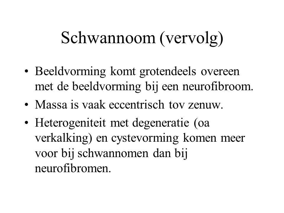 Schwannoom (vervolg) Beeldvorming komt grotendeels overeen met de beeldvorming bij een neurofibroom.