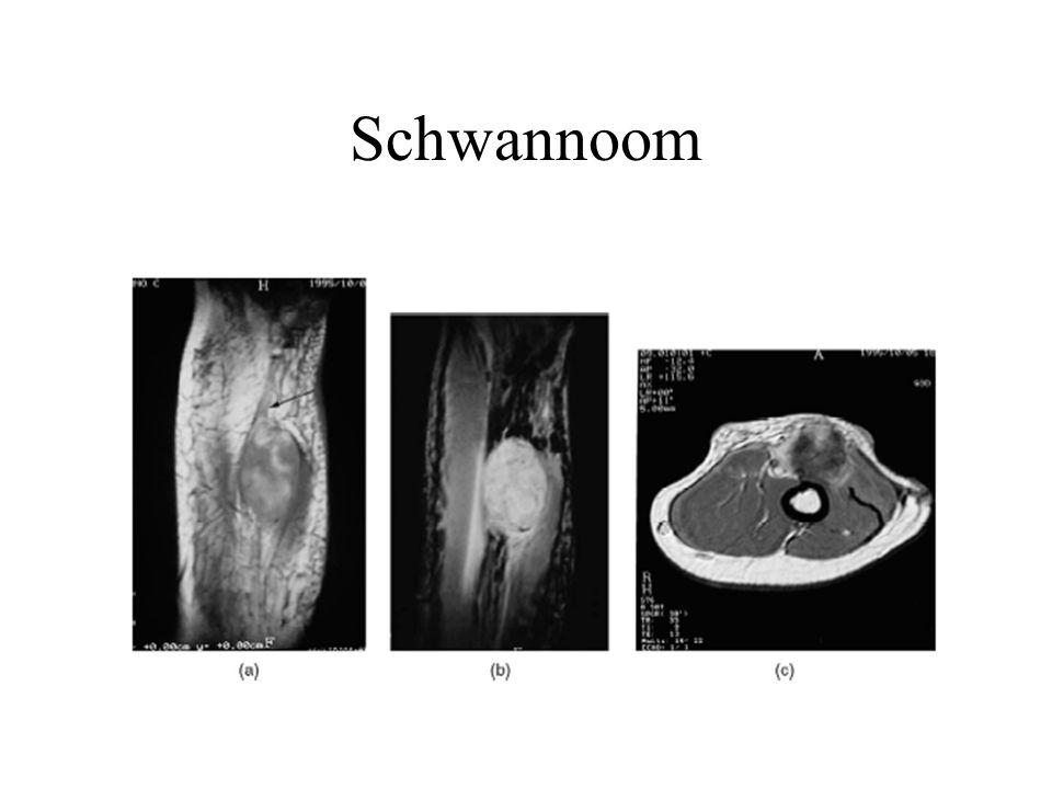 Schwannoom A- eccentrisch lesie B- inhomogene aankleuring
