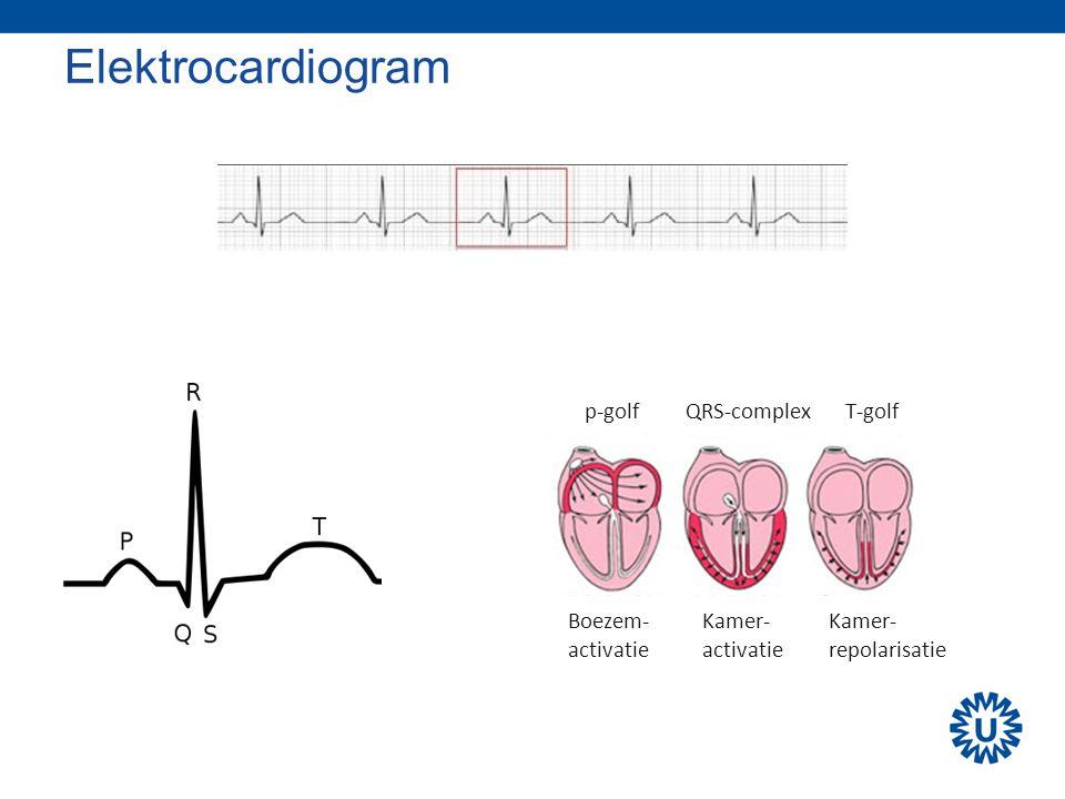 Elektrocardiogram p-golf QRS-complex T-golf Boezem- activatie Kamer-