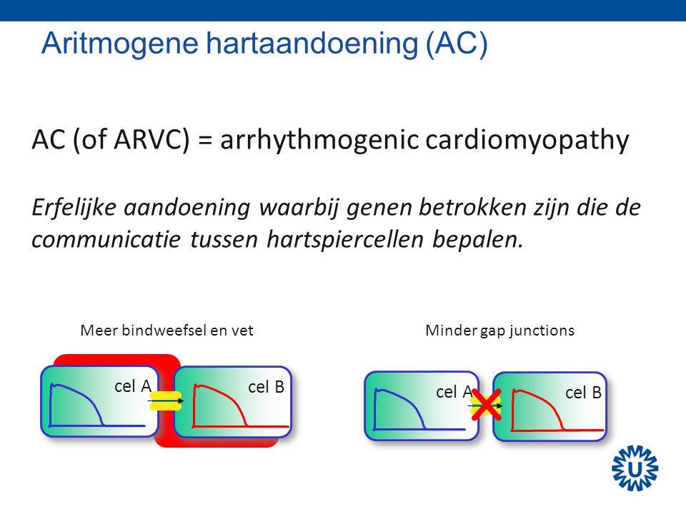 Aritmogene hartaandoening (AC)