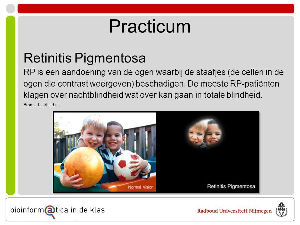Practicum Retinitis Pigmentosa