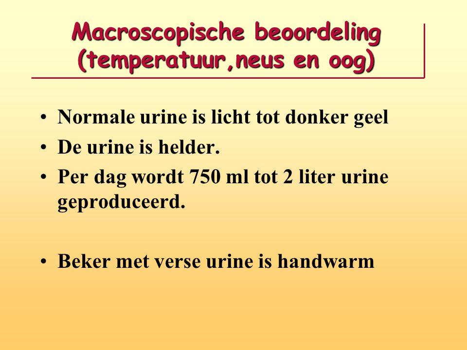 Macroscopische beoordeling (temperatuur,neus en oog)