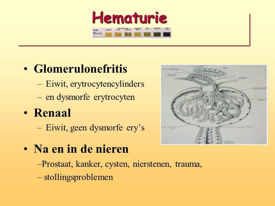 Hematurie Glomerulonefritis Renaal Na en in de nieren