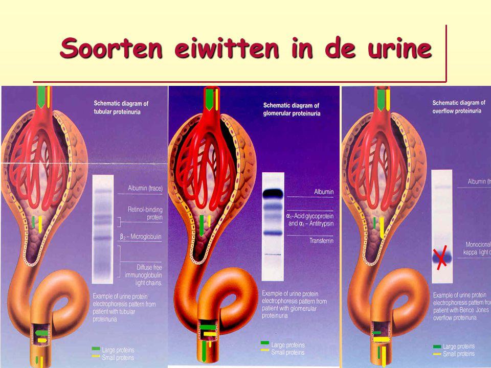 Soorten eiwitten in de urine