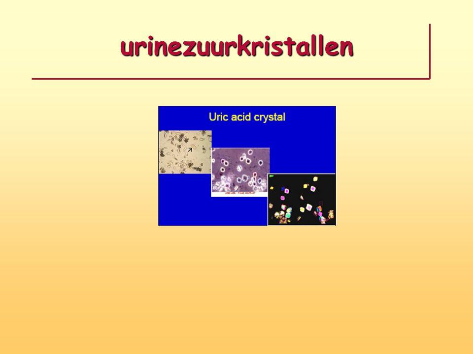 urinezuurkristallen