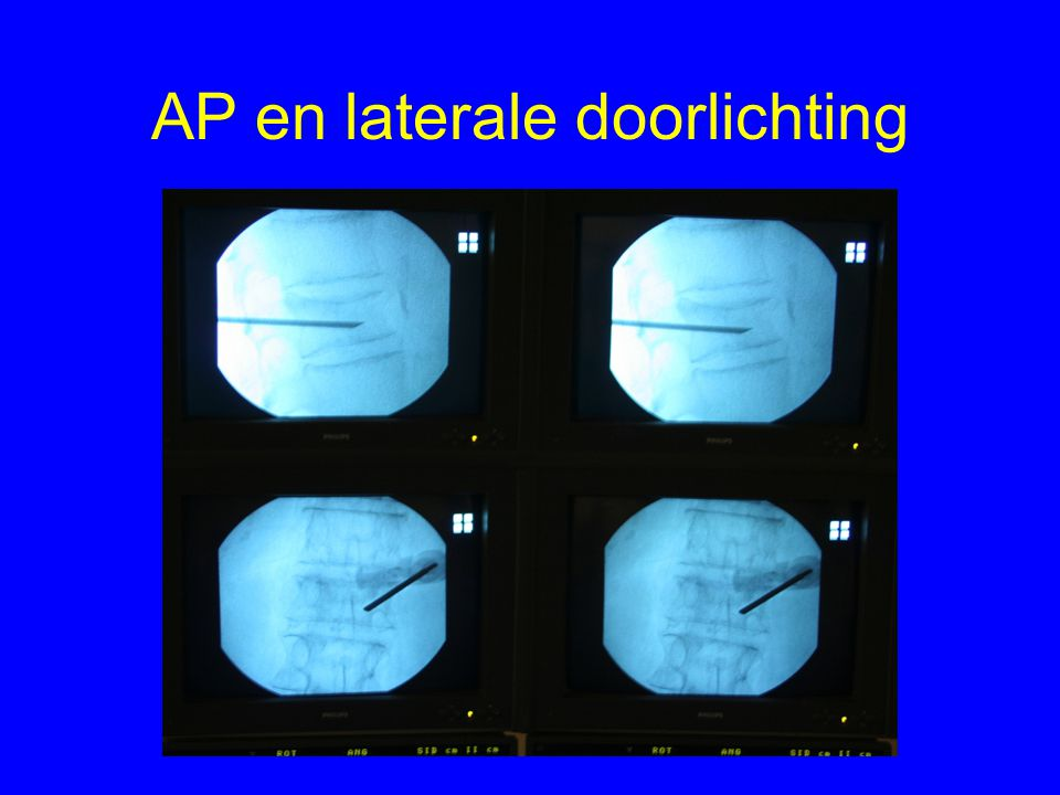 AP en laterale doorlichting