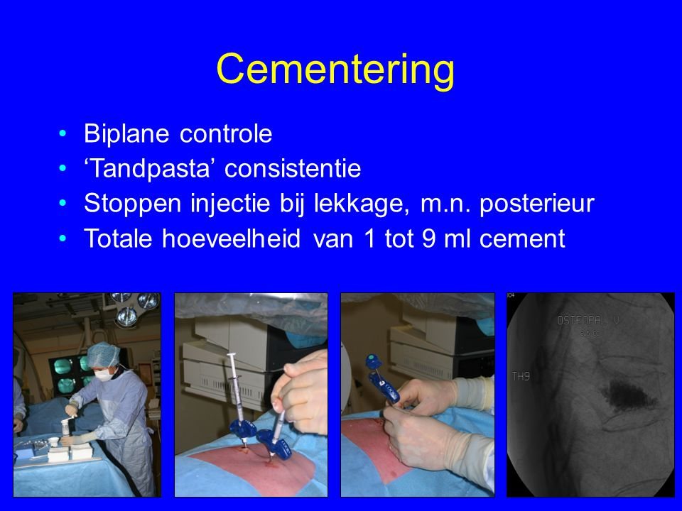 Cementering Biplane controle 'Tandpasta' consistentie