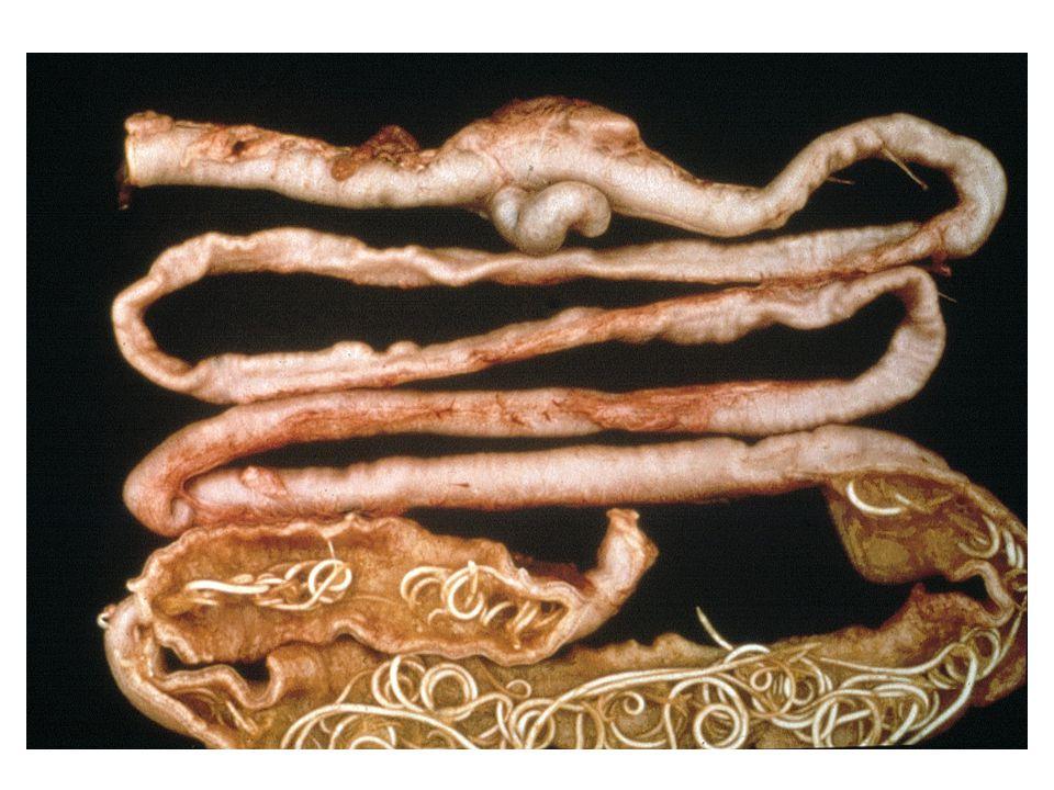 Dia nr. 22029 (Toxoc) Darm met wormen (nieuw dia nr. is: 00664)