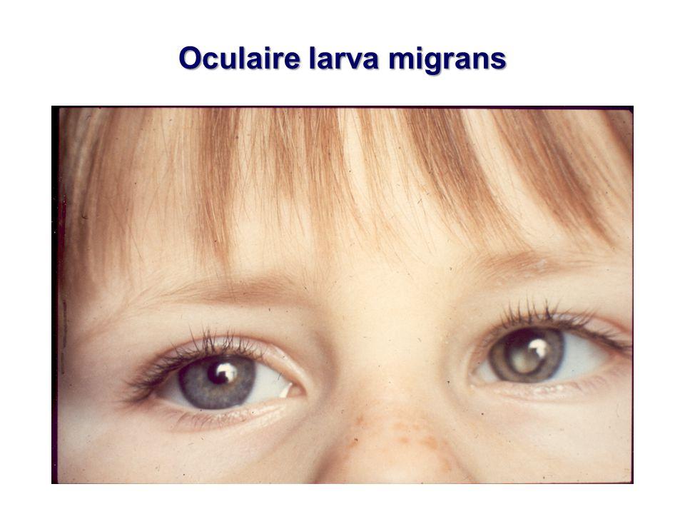 Oculaire larva migrans