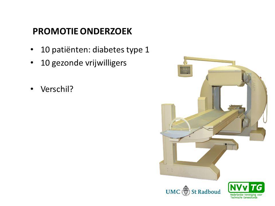 Promotie onderzoek 10 patiënten: diabetes type 1
