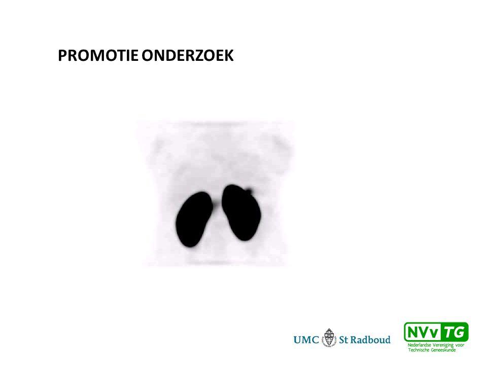 Promotie onderzoek