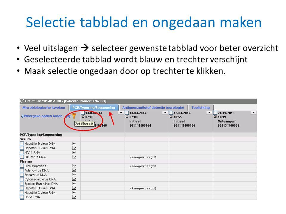Selectie tabblad en ongedaan maken