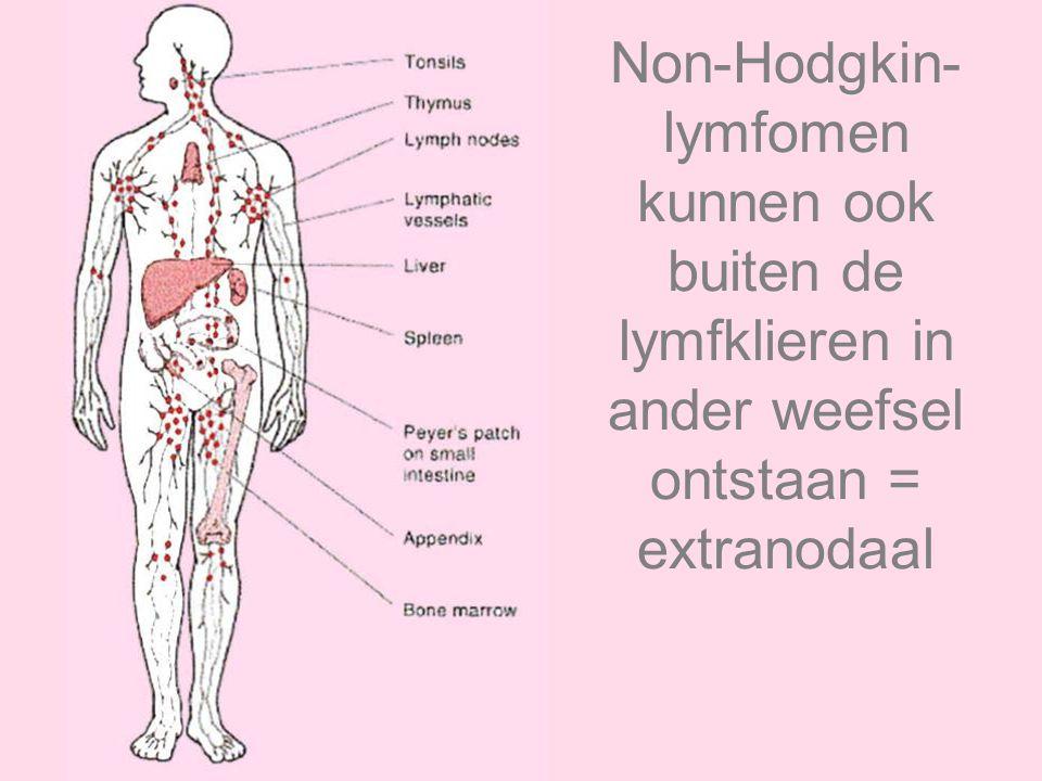 Non-Hodgkin- lymfomen kunnen ook buiten de lymfklieren in ander weefsel ontstaan = extranodaal