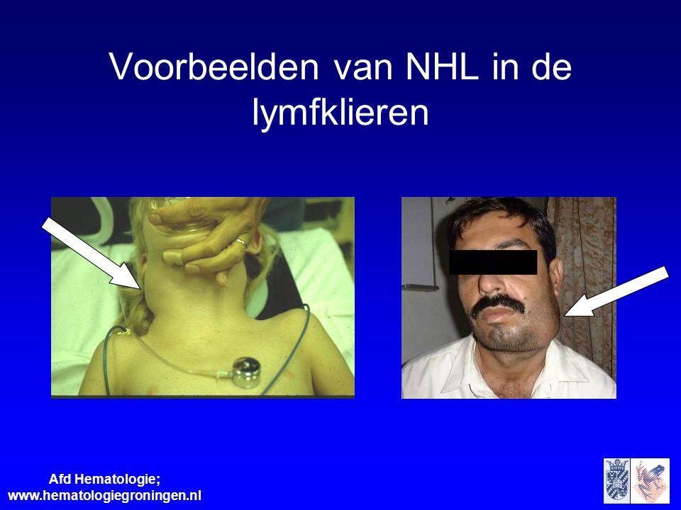 Voorbeelden van NHL in de lymfklieren