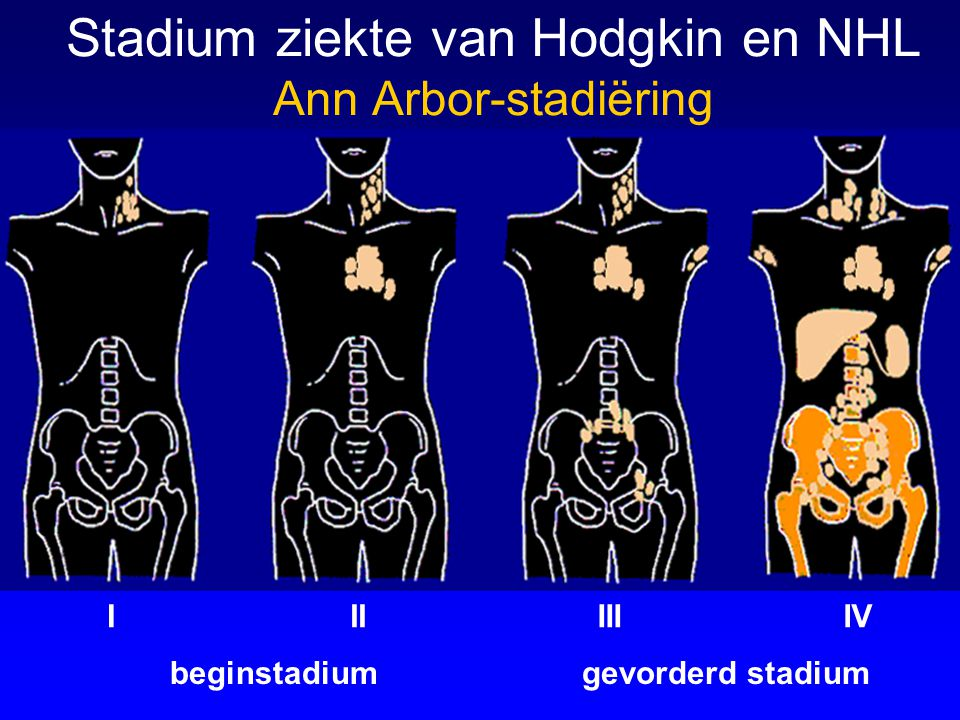 Stadium ziekte van Hodgkin en NHL Ann Arbor-stadiëring
