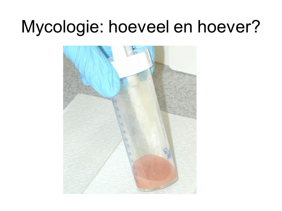 Mycologie: hoeveel en hoever