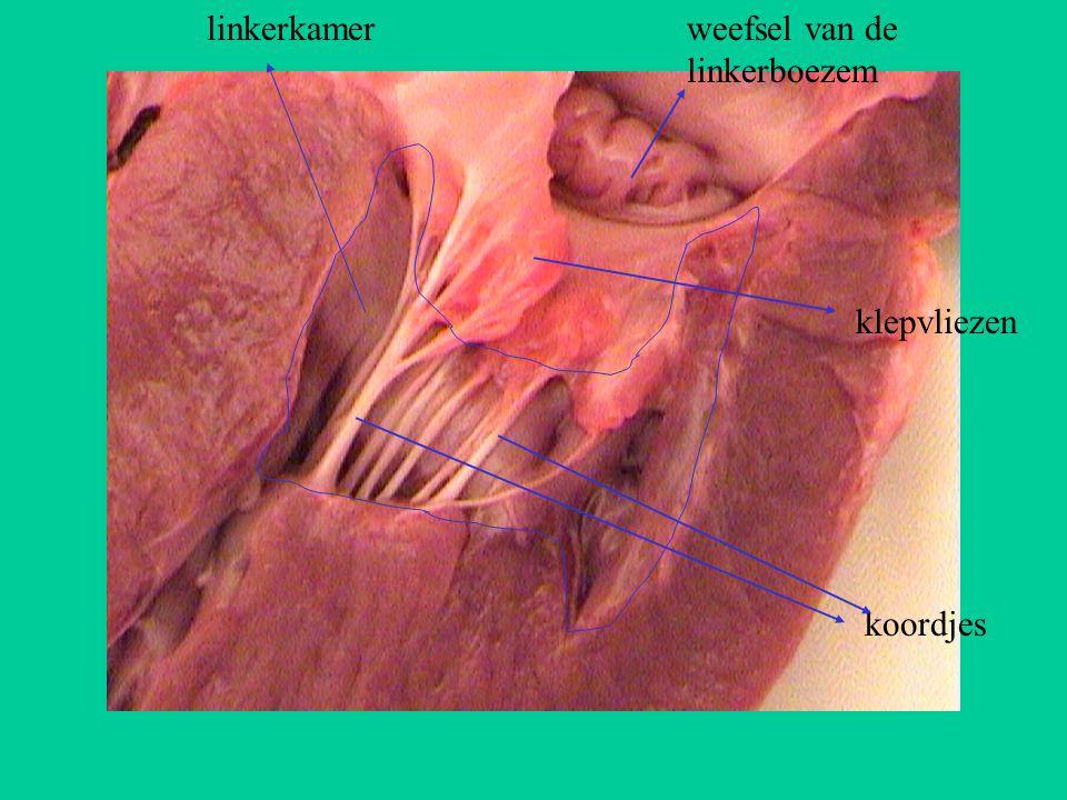 linkerkamer weefsel van de linkerboezem klepvliezen koordjes