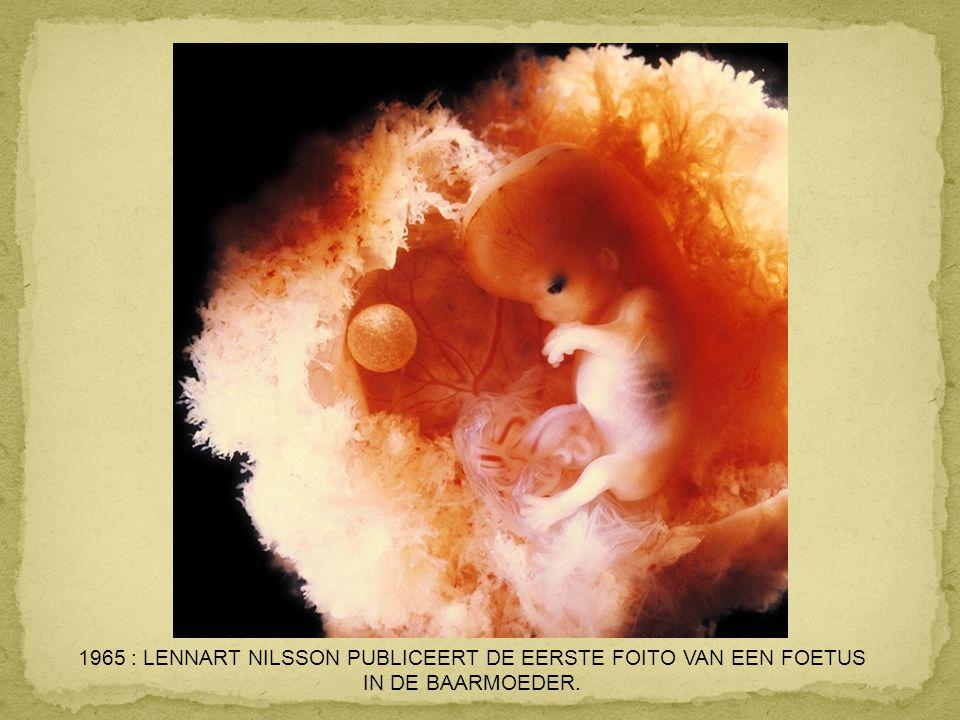 1965 : LENNART NILSSON PUBLICEERT DE EERSTE FOITO VAN EEN FOETUS