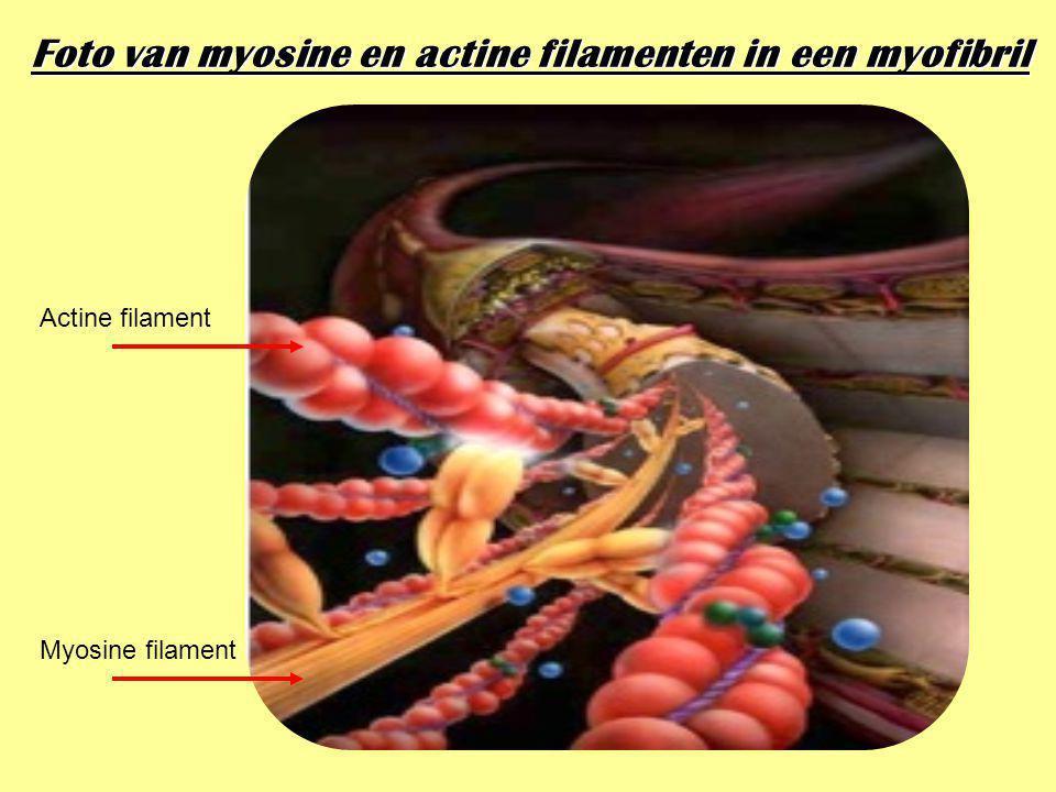 Foto van myosine en actine filamenten in een myofibril