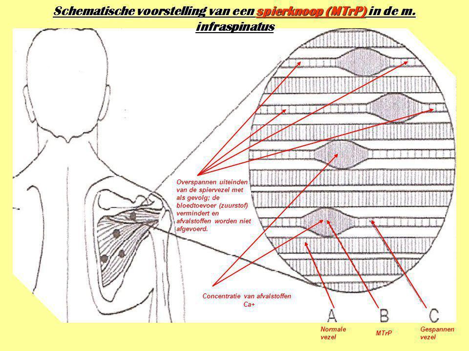 Schematische voorstelling van een spierknoop (MTrP) in de m
