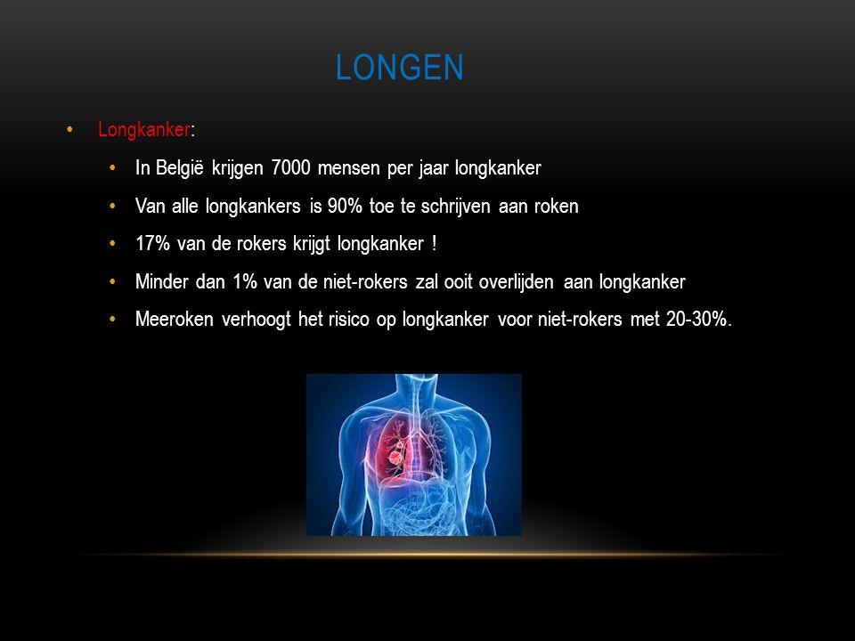 Longen Longkanker: In België krijgen 7000 mensen per jaar longkanker