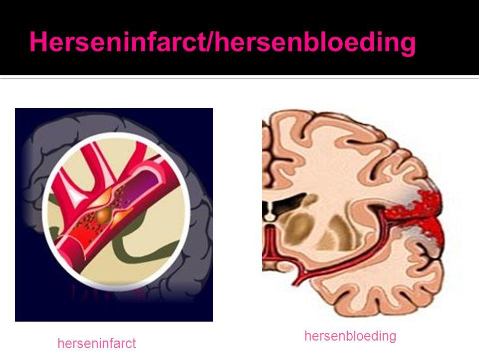 Herseninfarct/hersenbloeding