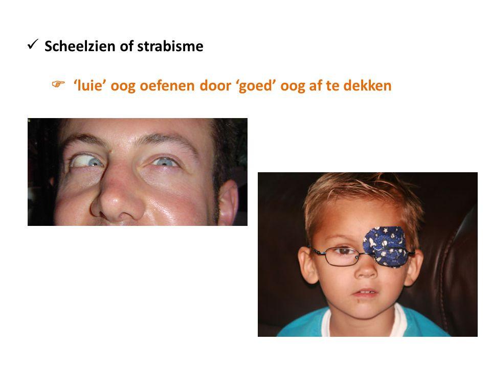 Scheelzien of strabisme