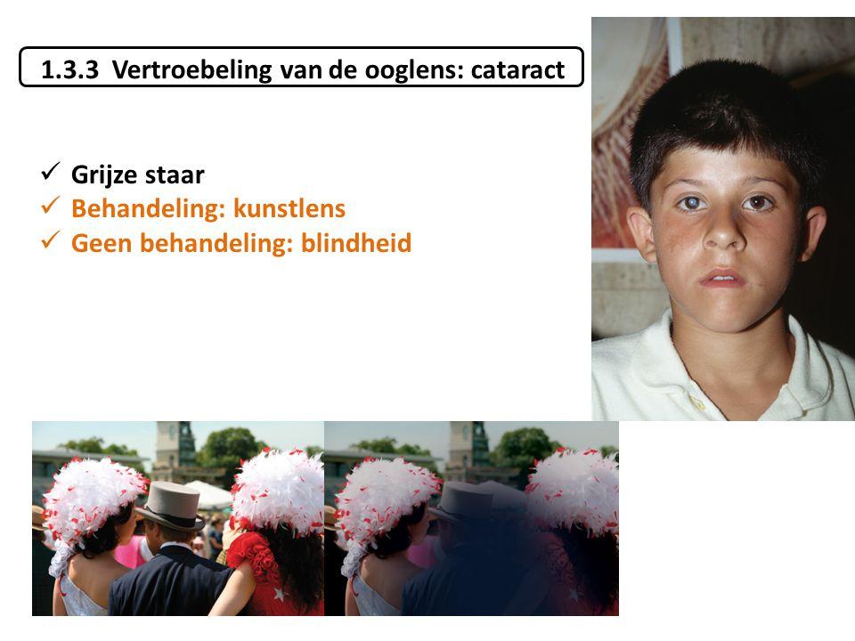 1.3.3 Vertroebeling van de ooglens: cataract