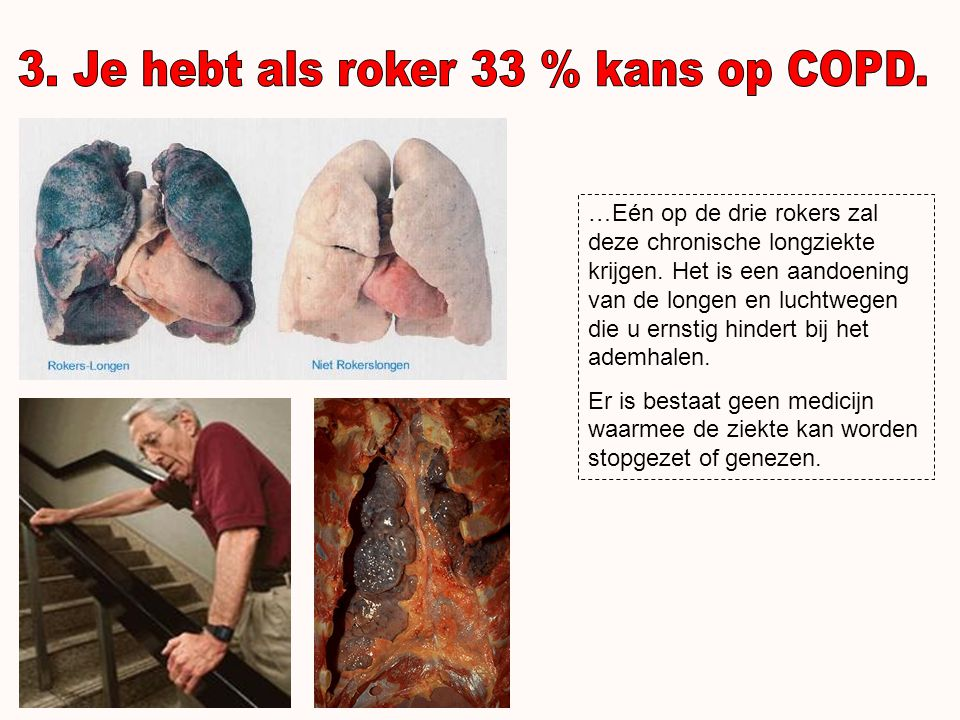 3. Je hebt als roker 33 % kans op COPD.