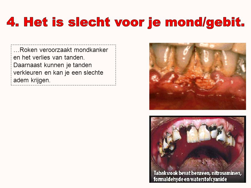 4. Het is slecht voor je mond/gebit.